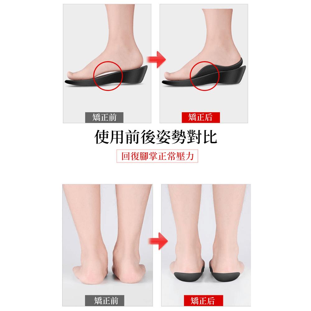 日本運動扁平足矯正鞋墊 5